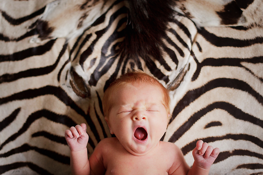 newborn boy with zebra skin